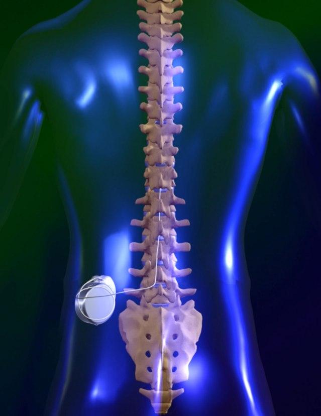 Spinal Cord Stimulator II